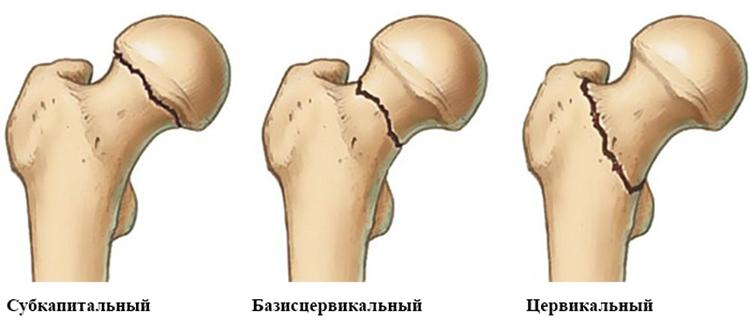 шейка бедра перелом у пожилого