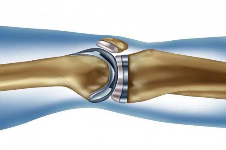 реабилитация после замены коленного