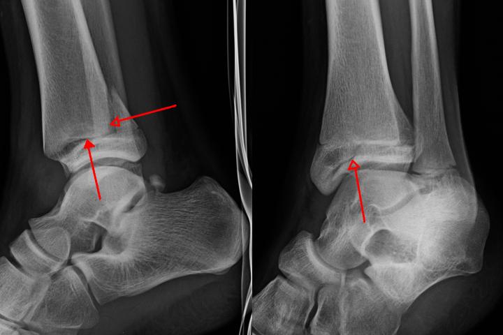 физиотерапия после перелома лодыжки