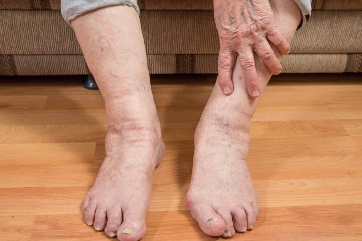 почему у пожилых людей отекают ноги
