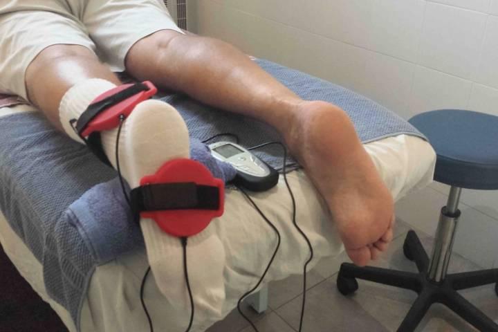 восстановление лодыжки после перелома