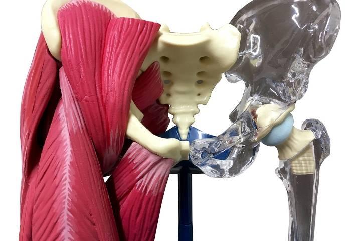 лфк после эндопротезирования тазобедренного сустава дома