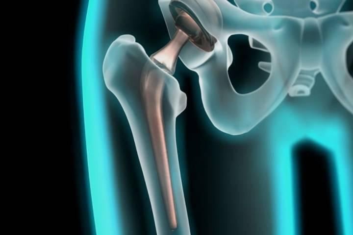 реабилитация после перелома бедренной кости после операции