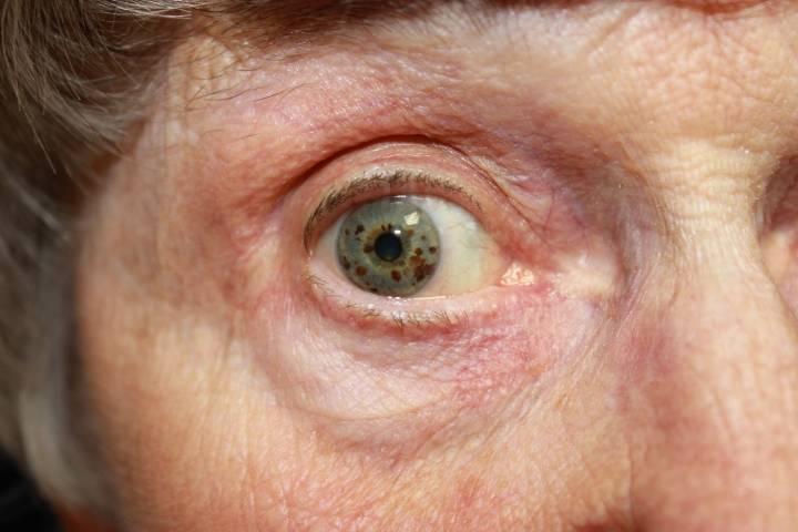 Глаукома у пожилых людей операция thumbnail