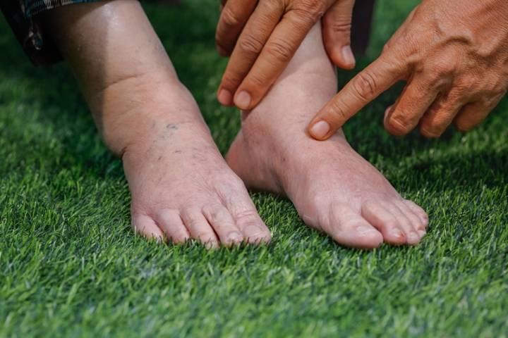 Отеки на ногах у пожилых лечение видео thumbnail
