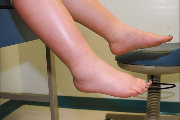 отеки ног причины и лечение у пожилых