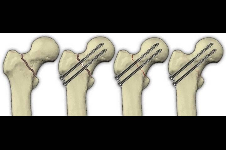 восстановление после перелома бедра после операции