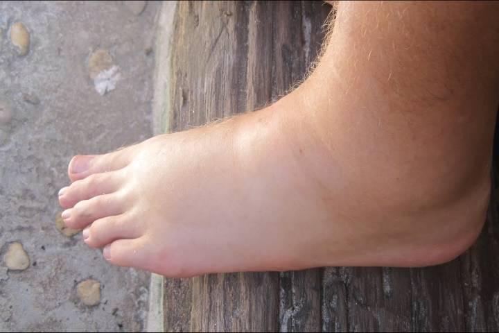 отеки на ногах у пожилых женщин причины