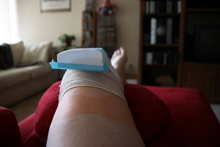 замена коленного сустава послеоперационный период