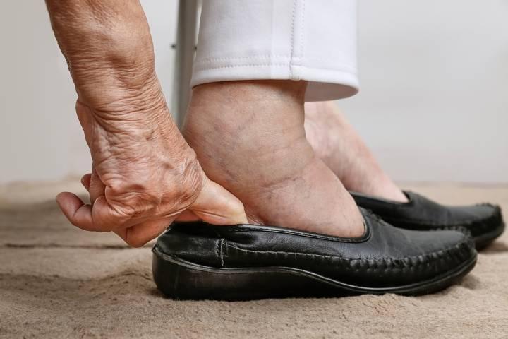 у пожилого человека отекают ноги