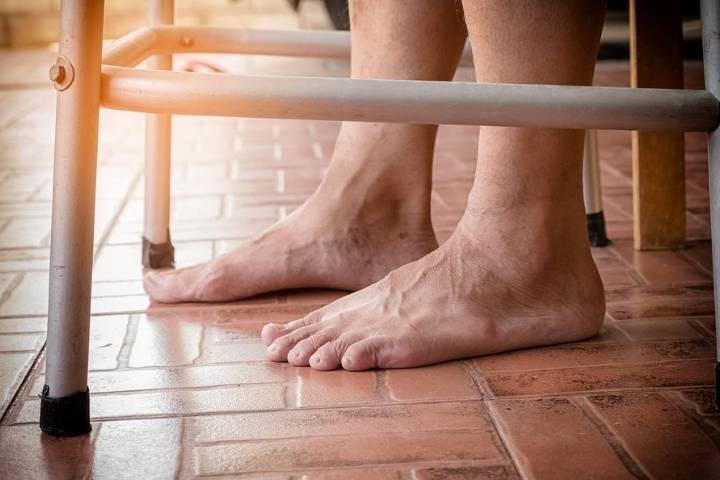 отек ног у пожилых людей причины