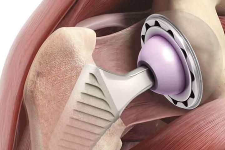 операция на тазобедренном суставе реабилитация как долго