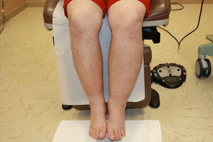 отекают ноги причина у пожилых