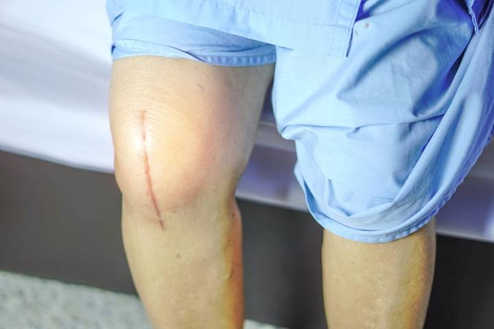 замена коленного сустава срок реабилитации