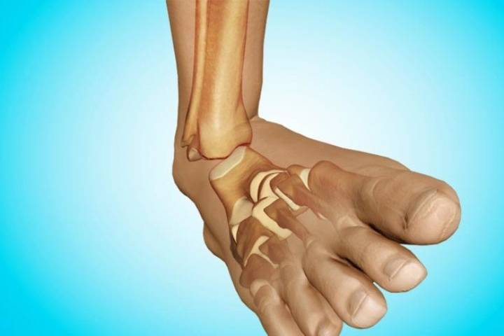 сколько длится реабилитация после перелома лодыжки
