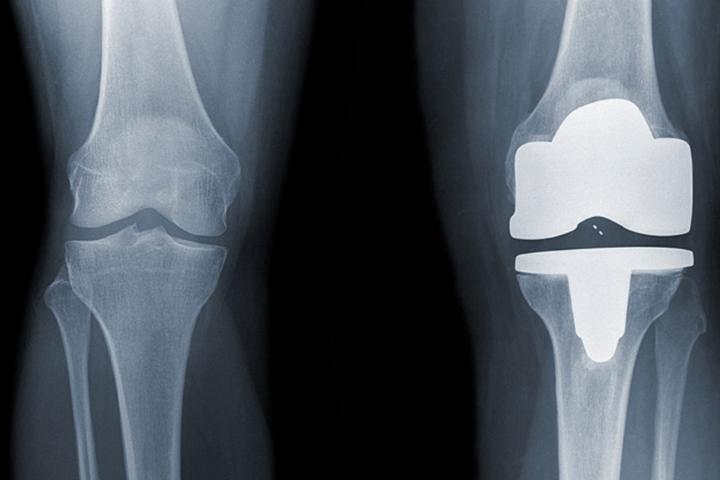 после операции по замене коленного сустава