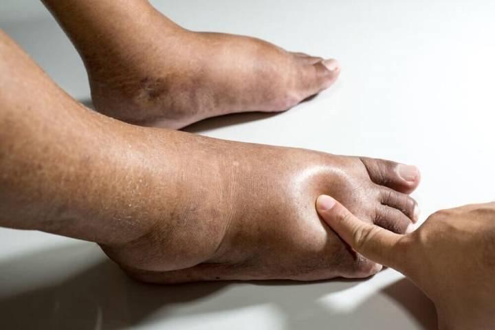 отекли ноги у пожилого человека причины